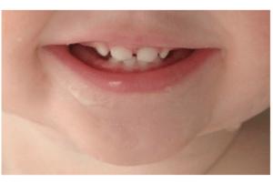 Poussée dentaire chez bébé comment le soulager?